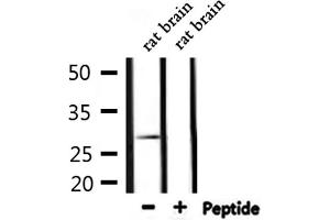 Western Blotting (WB) image for anti-Lectin, Galactoside-Binding, Soluble, 3 (LGALS3) antibody (ABIN6261872)