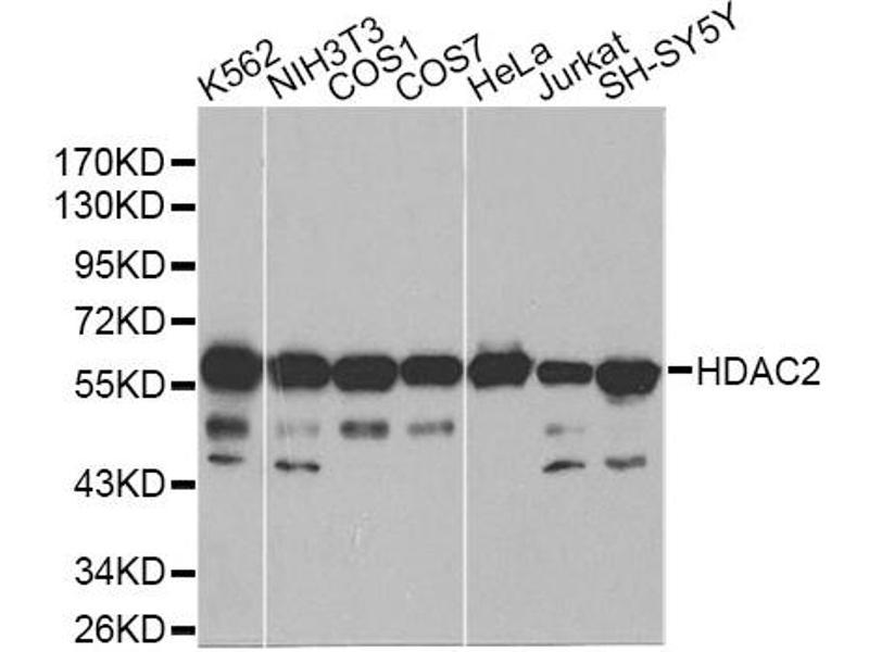 Image no. 1 for anti-Histone Deacetylase 2 (HDAC2) antibody (ABIN6569092)
