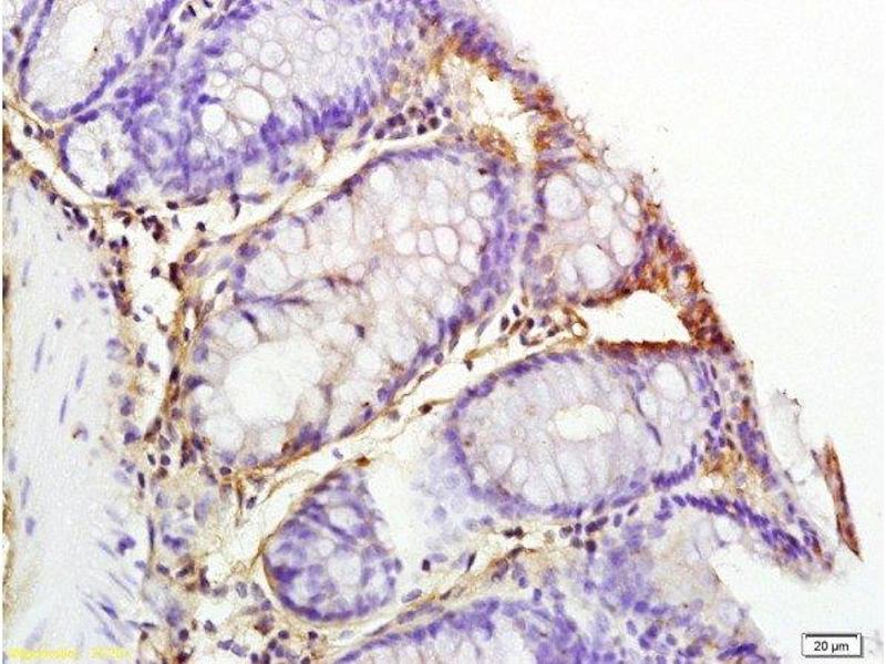 Immunohistochemistry (Paraffin-embedded Sections) (IHC (p)) image for anti-Interleukin 1, beta (IL1B) (AA 190-240) antibody (ABIN872644)