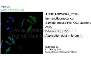 image for anti-Adducin 2 (Beta) (ADD2) (Middle Region) antibody (ABIN2784900)