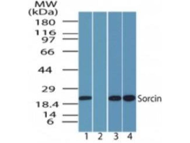 Western Blotting (WB) image for anti-5-Hydroxytryptamine (serotonin) Receptor 2C (HTR2C) antibody (ABIN4355857)