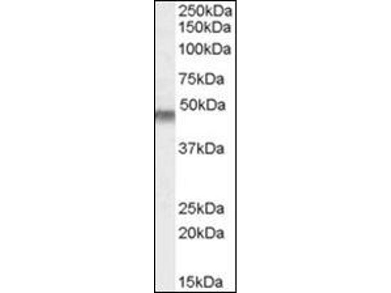 Western Blotting (WB) image for anti-Potassium Inwardly-Rectifying Channel, Subfamily J, Member 11 (KCNJ11) (Internal Region) antibody (ABIN614944)
