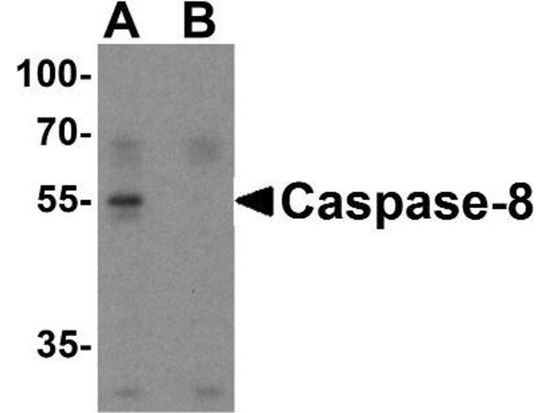 Western Blotting (WB) image for anti-Caspase 8 antibody (Caspase 8, Apoptosis-Related Cysteine Peptidase) (C-Term) (ABIN4288165)