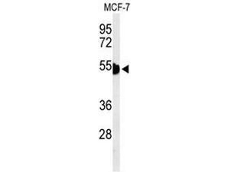 Western Blotting (WB) image for anti-Cytokeratin 1 (KRT1) (AA 422-451), (Middle Region) antibody (ABIN951809)