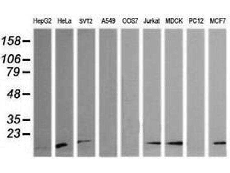 image for anti-HRAS antibody (V-Ha-Ras Harvey Rat Sarcoma Viral Oncogene Homolog) (ABIN1498716)