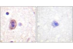Immunohistochemistry (IHC) image for anti-MAP2K4 antibody (Mitogen-Activated Protein Kinase Kinase 4) (ABIN1532726)