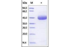 Image no. 1 for Tumor Necrosis Factor Receptor Superfamily, Member 10b (TNFRSF10B) (AA 56-182) (Active) protein (Fc Tag) (ABIN2181868)