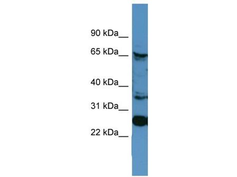Western Blotting (WB) image for anti-Calnexin (CANX) (C-Term) antibody (ABIN2788198)