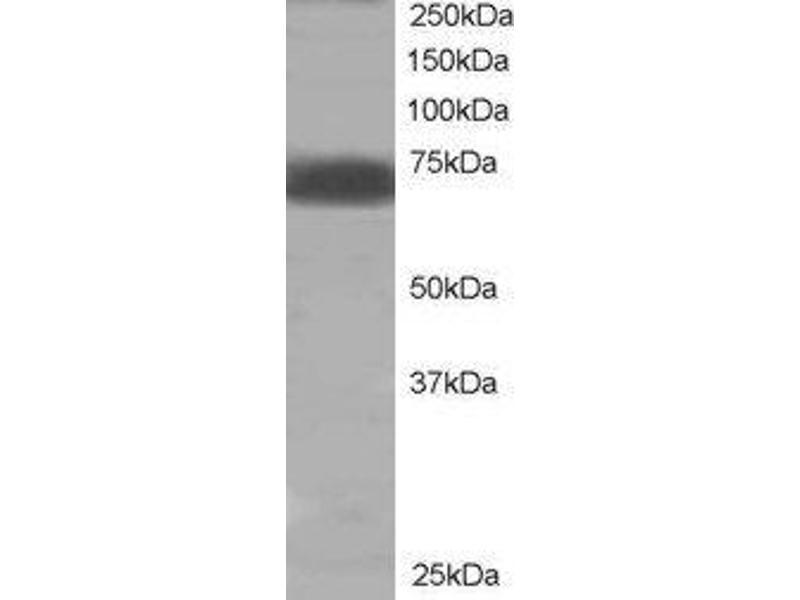 Western Blotting (WB) image for anti-PTPN11 Antikörper (Protein tyrosine Phosphatase, Non-Receptor Type 11) (C-Term) (ABIN2559916)