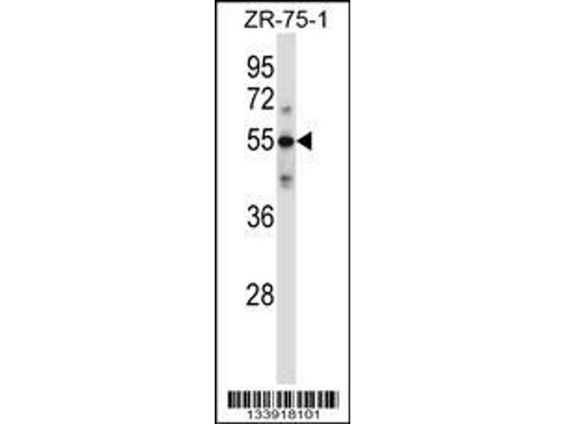 Western Blotting (WB) image for anti-Complement Component C9 (C9) (AA 191-220), (Center) antibody (ABIN657704)