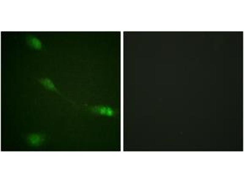 Immunofluorescence (IF) image for anti-Mdm2, p53 E3 Ubiquitin Protein Ligase Homolog (Mouse) (MDM2) (AA 132-181) antibody (ABIN1532360)