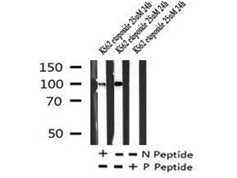 Image no. 1 for anti-Fms-Related tyrosine Kinase 1 (Vascular Endothelial Growth Factor/vascular Permeability Factor Receptor) (FLT1) (pSer1048) antibody (ABIN6269909)