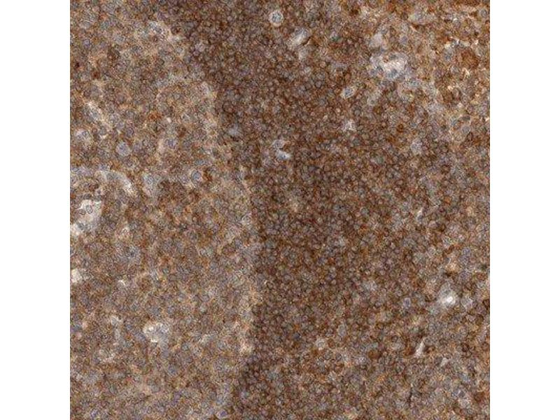 Immunohistochemistry (Paraffin-embedded Sections) (IHC (p)) image for anti-DBNL antibody (Drebrin-Like) (ABIN4317499)