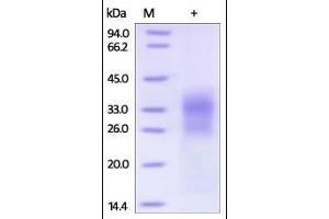 Image no. 1 for Sclerostin (SOST) (AA 24-213) protein (His tag) (ABIN2181781)