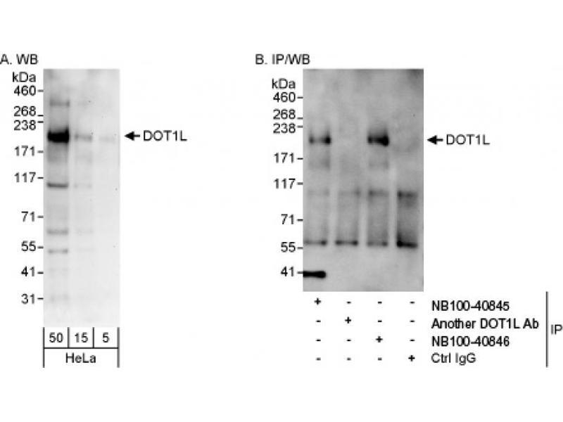 Western Blotting (WB) image for anti-DOT1-Like, Histone H3 Methyltransferase (S. Cerevisiae) (DOT1L) antibody (ABIN251529)
