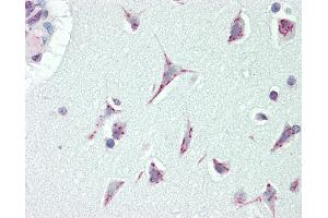 Image no. 3 for anti-Cancer Susceptibility Candidate 4 (CASC4) (AA 336-365) antibody (ABIN1977267)