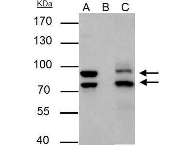 Immunoprecipitation (IP) image for anti-Mdm2, p53 E3 Ubiquitin Protein Ligase Homolog (Mouse) (MDM2) (Center) antibody (ABIN2854782)