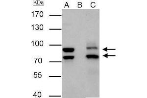 Immunoprecipitation (IP) image for anti-MDM2 Antikörper (Mdm2, p53 E3 Ubiquitin Protein Ligase Homolog (Mouse)) (Center) (ABIN2854782)