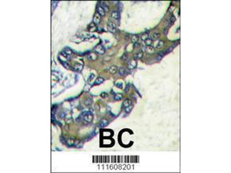 Immunohistochemistry (IHC) image for anti-Mitogen-Activated Protein Kinase 1 (MAPK1) (AA 316-345), (C-Term) antibody (ABIN1882175)
