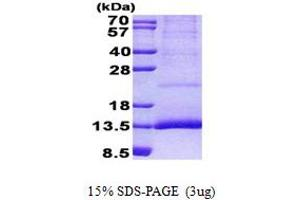 Image no. 1 for Cystatin 11 (CST11) (AA 26-103) protein (His tag) (ABIN5852992)