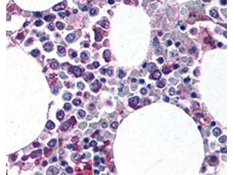 Immunohistochemistry (IHC) image for anti-Integrin alpha M (ITGAM) (AA 500-600), (Internal Region) antibody (ABIN258322)
