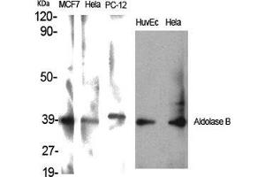 Image no. 2 for anti-Aldolase B, Fructose-Bisphosphate (ALDOB) (Internal Region) antibody (ABIN3183247)