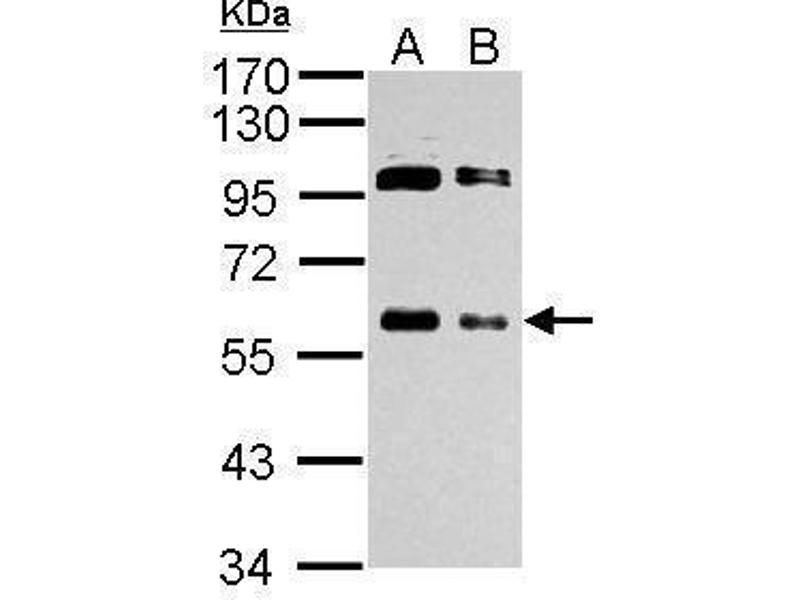 Western Blotting (WB) image for anti-V-Myc Myelocytomatosis Viral Oncogene Homolog (Avian) (MYC) (Center) antibody (ABIN2855631)