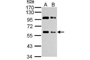 Western Blotting (WB) image for anti-C-MYC antibody (V-Myc Myelocytomatosis Viral Oncogene Homolog (Avian)) (Center) (ABIN2855631)
