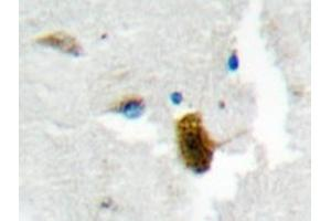 Immunohistochemistry (Paraffin-embedded Sections) (IHC (p)) image for anti-Rac GTPase Activating Protein 1 (RACGAP1) antibody (ABIN498154)