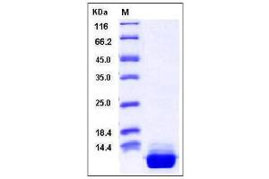 Image no. 1 for S100 Calcium Binding Protein A10 (S100A10) (AA 2-97) protein (His tag) (ABIN2004014)