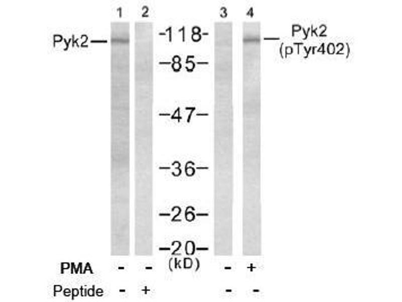 Image no. 2 for anti-PTK2B Protein tyrosine Kinase 2 beta (PTK2B) (pTyr402) antibody (ABIN196952)