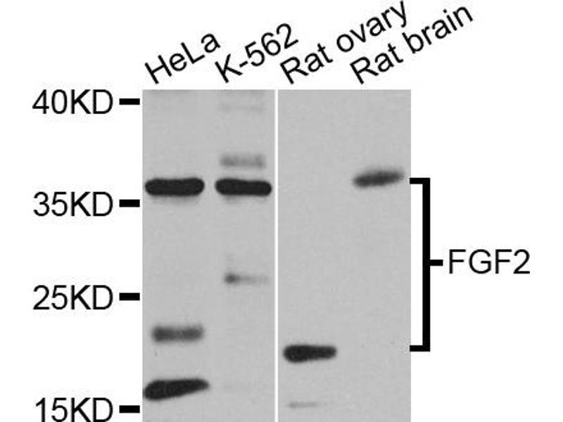 Image no. 3 for anti-Fibroblast Growth Factor 2 (Basic) (FGF2) antibody (ABIN6566521)