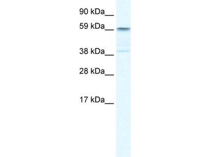 Western Blotting (WB) image for anti-Tripartite Motif Containing 41 (TRIM41) (C-Term) antibody (ABIN183016)