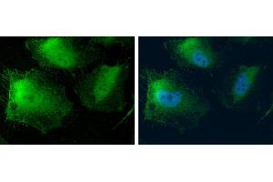 Image no. 4 for anti-Methylthioadenosine phosphorylase (MTAP) (full length) antibody (ABIN2856653)