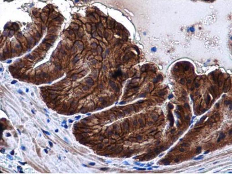 Immunohistochemistry (IHC) image for anti-Cadherin 1, Type 1, E-Cadherin (Epithelial) (CDH1) (Center) antibody (ABIN2854751)