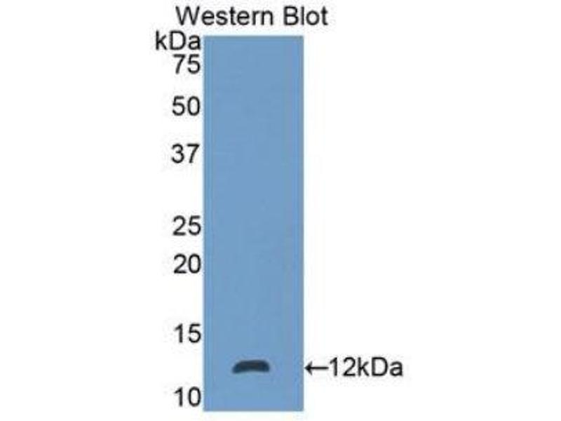 Western Blotting (WB) image for anti-S100 Calcium Binding Protein P (S100P) (AA 1-95) antibody (ABIN1078519)