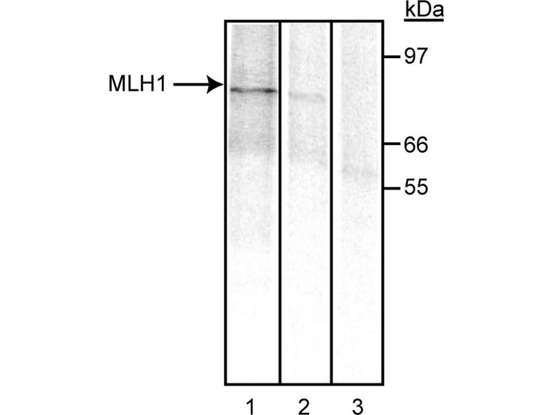 Western Blotting (WB) image for anti-MLH1 antibody (MutL Homolog 1, Colon Cancer, Nonpolyposis Type 2 (E. Coli)) (ABIN967392)