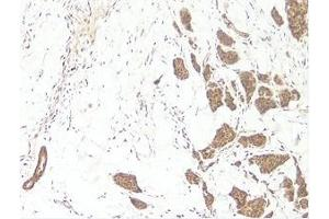 Immunohistochemistry (Paraffin-embedded Sections) (IHC (p)) image for anti-WNT3A antibody (Wingless-Type MMTV Integration Site Family, Member 3A) (ABIN181375)