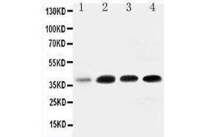 Image no. 1 for anti-Insulin-Like Growth Factor Binding Protein 3 (IGFBP3) (AA 182-198), (Middle Region) antibody (ABIN3044421)