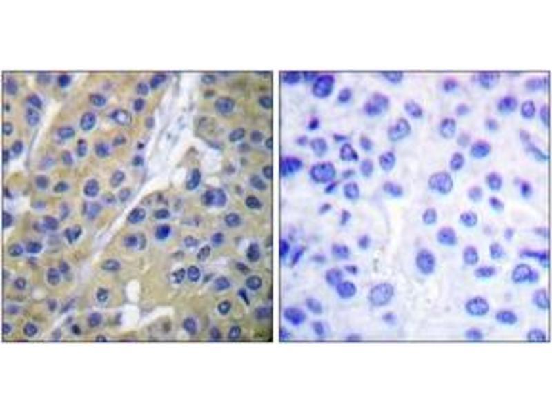 Immunohistochemistry (IHC) image for anti-Keratin 18 (KRT18) (pSer34), (AA 1-50) antibody (ABIN1531185)