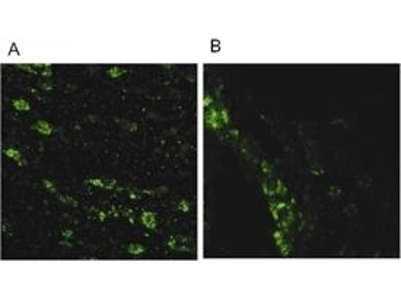 Immunofluorescence (IF) image for anti-Leucine-Rich Repeat Kinase 2 (LRRK2) (AA 2500-2527), (C-Term) antibody (ABIN258599)