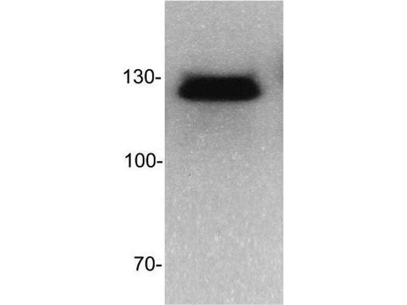 Western Blotting (WB) image for anti-DNMT3B antibody (DNA (Cytosine-5-)-Methyltransferase 3 beta) (AA 1-14) (ABIN152675)
