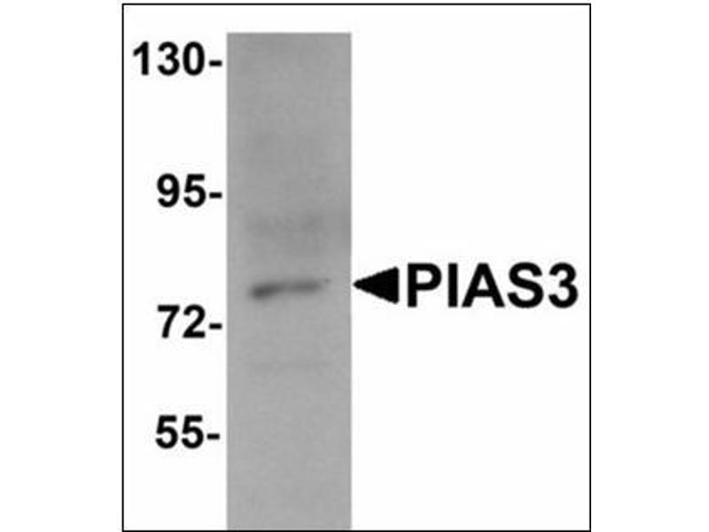Western Blotting (WB) image for anti-Protein Inhibitor of Activated STAT, 3 (PIAS3) (C-Term) antibody (ABIN783253)