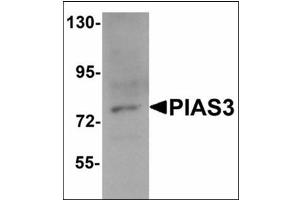 Western Blotting (WB) image for anti-PIAS3 antibody (Protein Inhibitor of Activated STAT, 3) (C-Term) (ABIN783253)