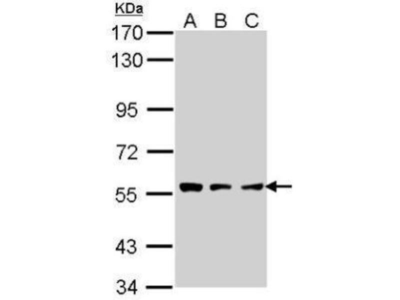 Western Blotting (WB) image for anti-Tripeptidyl Peptidase I (TPP1) (Center) antibody (ABIN2856899)