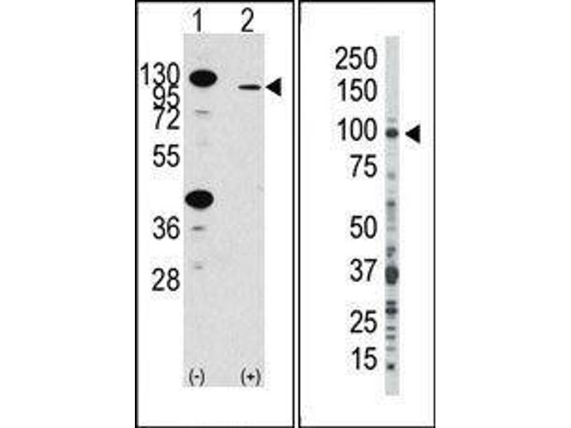 Western Blotting (WB) image for anti-Fibroblast Growth Factor Receptor 2 (FGFR2) (N-Term) antibody (ABIN359854)