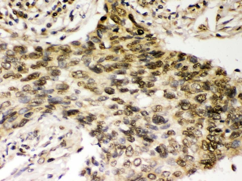 Immunohistochemistry (Paraffin-embedded Sections) (IHC (p)) image for anti-Checkpoint Kinase 2 (CHEK2) (AA 465-498), (C-Term) antibody (ABIN3043811)