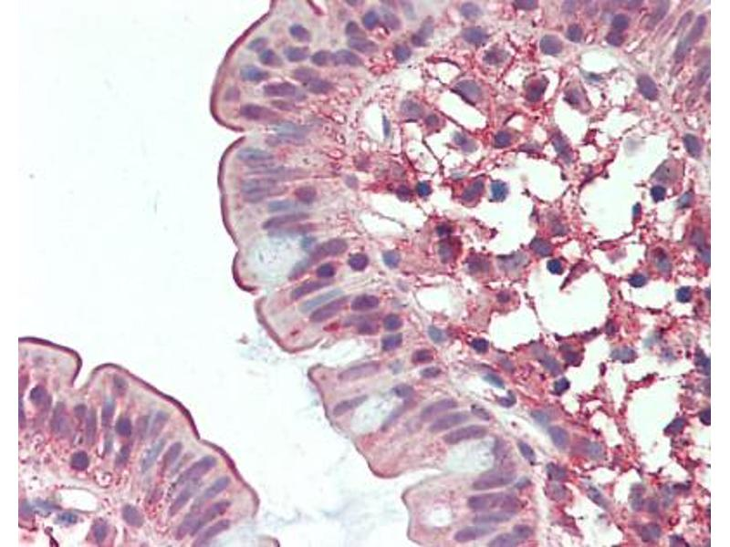 Immunohistochemistry (Paraffin-embedded Sections) (IHC (p)) image for anti-Dipeptidyl-Peptidase 4 (DPP4) (Internal Region) antibody (ABIN213568)