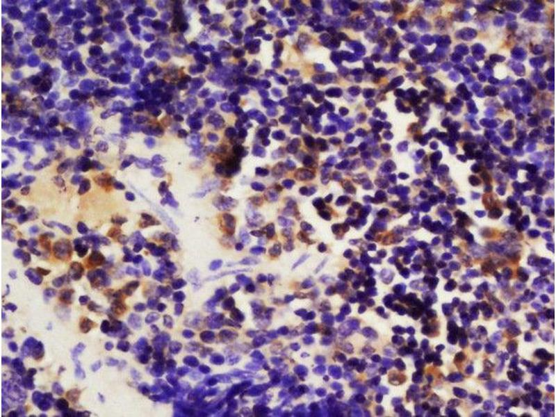 Immunohistochemistry (Paraffin-embedded Sections) (IHC (p)) image for anti-Mitogen-Activated Protein Kinase Kinase Kinase Kinase 1 (MAP4K1) (AA 150-200), (pSer171) antibody (ABIN710396)