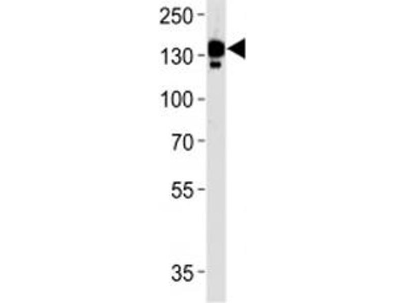 Western Blotting (WB) image for anti-Ceruloplasmin (Ferroxidase) (CP) (AA 121-151) antibody (ABIN3030467)